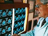 Neurologist examines brain scans (Corbis)